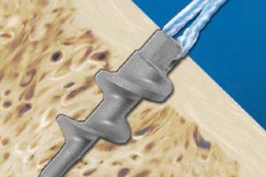 Titanium Anchors